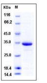 Human HIF-1 alpha / HIF1A Recombinant Protein (His Tag)