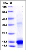 Human KIT / c-KIT / CD117 Recombinant Protein (aa 50-190, His Tag)