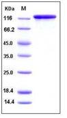 Human Galectin-7 / LGALS7 Recombinant Protein (His Tag)