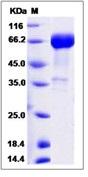 Human CD33 / Siglec-3 Recombinant Protein (Fc Tag)