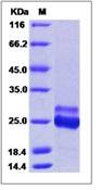 Human K-Ras / K-Ras (12 Cys) Recombinant Protein (His Tag)
