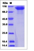 Human Pregnancy Specific GlycoRecombinant Protein 1 Recombinant Protein (Fc Tag)