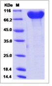 Human CADM4 / IGSF4C / NECL-4 Recombinant Protein (Fc Tag)