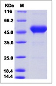 Human CD90 / THY-1 Recombinant Protein (Fc Tag)