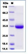 Human IgE-Fc Recombinant Protein (Constant Domain 3&4, His Tag)