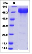 Mouse PD-L1 / B7-H1 / CD274 Recombinant Protein (ECD, Fc Tag)