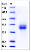 Mouse ALK-3 / BMPR1A Recombinant Protein (His Tag)