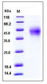 Mouse PD1 / PDCD1 Recombinant Protein (His Tag)