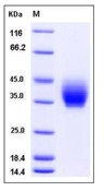 Mouse ICOS / AILIM / CD278 Recombinant Protein (Fc Tag)