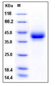 Mouse CD209B / DC-SIGNR1 Recombinant Protein (His Tag)