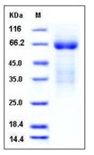 Mouse LY9 / CD229 / SLAMF3 Recombinant Protein (His Tag)
