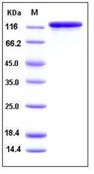 Mouse CD69 / CLEC2C / AIM Recombinant Protein (His Tag, ECD)