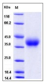 Mouse CD84 Recombinant Protein (His Tag)