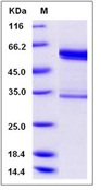 Mouse tPA / PLAT Recombinant Protein (Fc Tag)