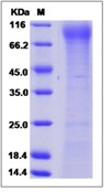 Mouse FLT-3 / CD135 / FLK-2 Recombinant Protein (His Tag)