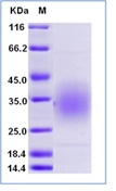 Mouse CD47 Recombinant Protein