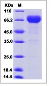 Human PD-L1 / B7-H1 / CD274 Recombinant Protein (ECD, Fc Tag)