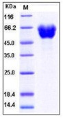 Human Ephrin-A5 / EFNA5 Recombinant Protein (Fc Tag)