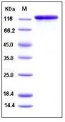 Human FGF7 / FGF-7 / KGF Recombinant Protein (His Tag)