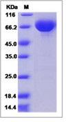 Human B7-DC / PD-L2 / CD273 / PDCD1LG2 Recombinant Protein (Fc Tag)