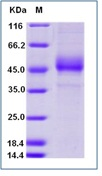 Human ICOS / AILIM / CD278 Recombinant Protein (Fc Tag)