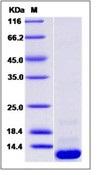 Human CCL20 / MIP-3 alpha Recombinant Protein (His Tag)