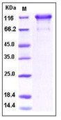 Human PDGFRa / CD140a Recombinant Protein (Fc Tag)