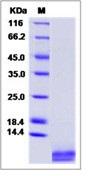 Human IGF-1 / IGF-I / IGF1 Recombinant Protein