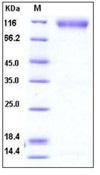 Human FGFR2 Recombinant Protein (His & Fc Tag)