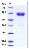 Human Ephrin-B2 / EFNB2 Recombinant Protein (His & Fc Tag)