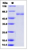 Human TIMP-1 / TIMP1 Recombinant Protein (Fc Tag)