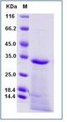 Human NGF / NGFB Recombinant Protein