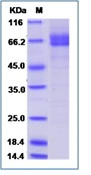 Human Galectin-9 / LGALS9 Recombinant Protein (Fc Tag)
