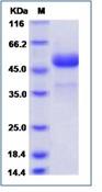 Human CTLA4 / CD152 Recombinant Protein (Fc Tag)