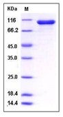 Human STAT1 / p91 Recombinant Protein (His & GST Tag)