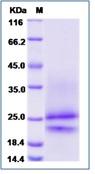 Human PDGFA / PDGF-1 Recombinant Protein (His Tag)