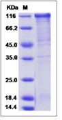 Human FSTL5 Recombinant Protein (Fc Tag)