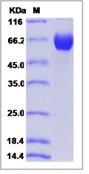 Human B7-H5 / Gi24 / VISTA Recombinant Protein (ECD, Fc Tag)
