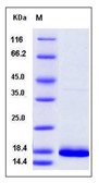Human FGF14 / SCA27 Recombinant Protein (isoform 1B)