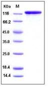 Human RASI-1 / MMP19 Recombinant Protein