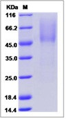 Human PARM1 / PARM-1 Recombinant Protein (His Tag)