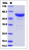 Human LAP3 / Cytosol aminopeptidase Recombinant Protein (His Tag)