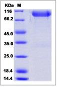 Human FGFR3 / CD333 Recombinant Protein (alpha(IIIb), Fc Tag)