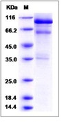 Mouse HGF / Hepatocyte Growth Factor Recombinant Protein