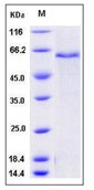 Mouse ADAM9 Recombinant Protein (His Tag)