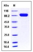 Mouse EphA7 / EHK-3 Recombinant Protein (His Tag)