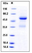 Mouse Ephrin-A1 / EFNA1 Recombinant Protein (Fc Tag)