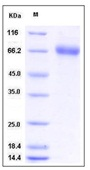 Mouse EphA1 / EPH receptor A1 Recombinant Protein (His Tag)