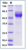 Mouse GITR / TNFRSF18 Recombinant Protein (Fc Tag)