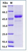 Rift Valley fever virus (RVFV) (strain MP12) glycoRecombinant Protein / Gc Recombinant Protein (His Tag)